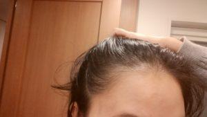 産後の薄毛